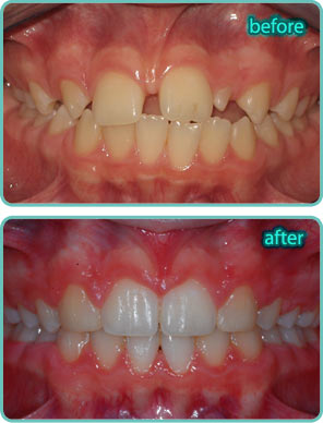 Spacing of the Teeth - Before & After