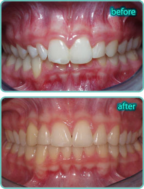 Overbite - Before & After